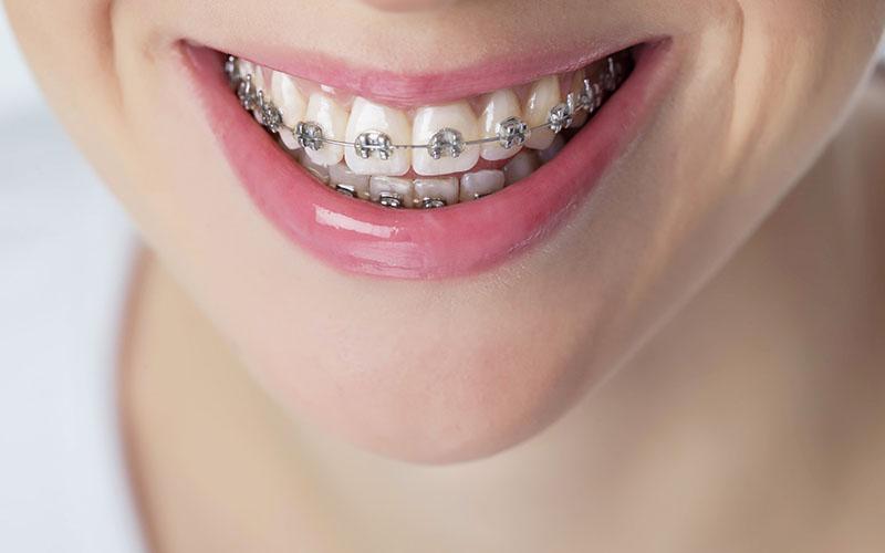 Aparatos dentales fijos en Zaragoza