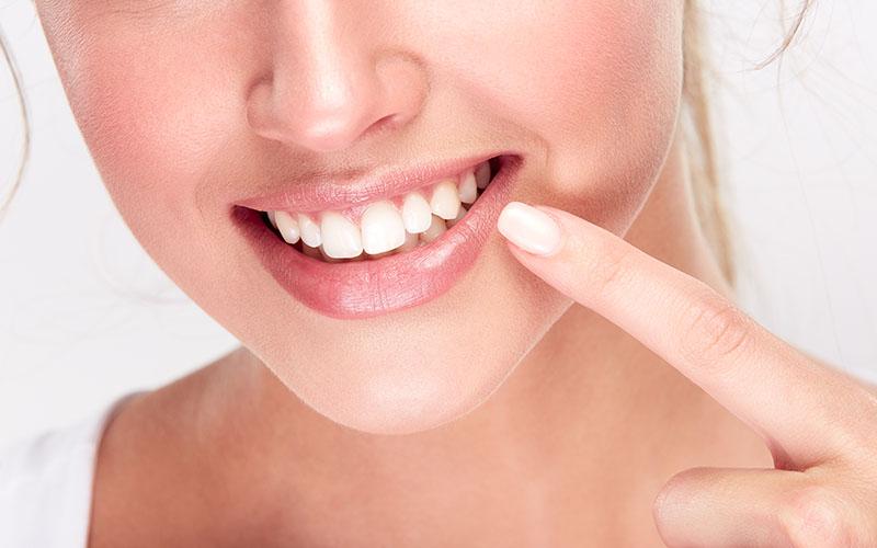 Tratamiento blanqueo dental