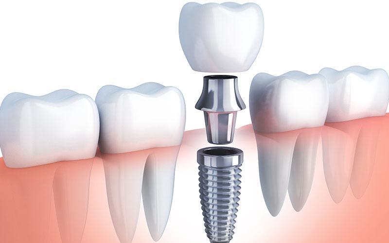 Especialistas implantes dentales