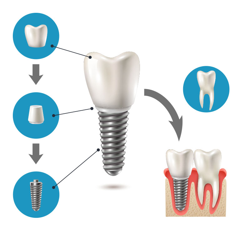 Partes implantes dentales
