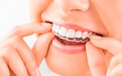 Ventajas de la ortodoncia Invisalign