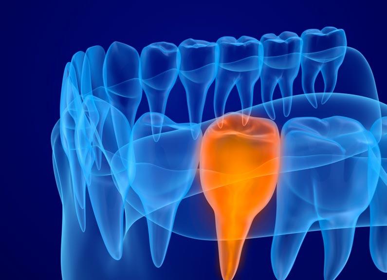 el diagnóstico en tratamientos de ortodoncia y su importancia