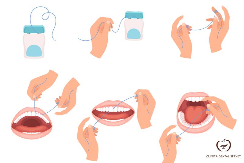 Cómo usar correctamente la seda dental
